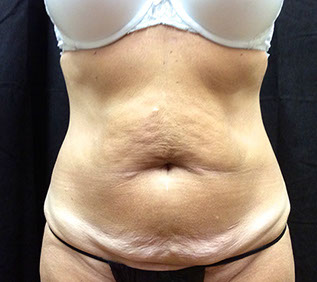 abdominoplasty-before317x283