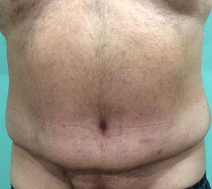 abdominoplasty-with-neo-umbilicus-after