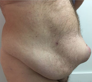 abdominoplasty-with-neo-umbilicus-before-2