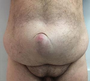 abdominoplasty-with-neo-umbilicus-before