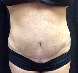 abdominoplasty_s1_after