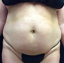 abdominoplasty_s1_before