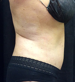 abdominoplasty_s2_after