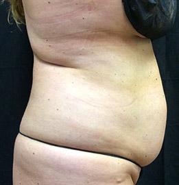 abdominoplasty_s2_before.
