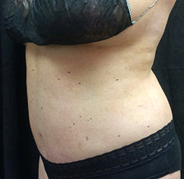 abdominoplasty_s3_after