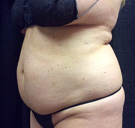 abdominoplasty_s3_before