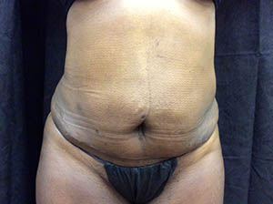 after_patient_abdominoplasty