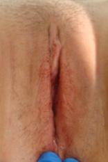 labia plasty after1