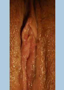 labia plasty after3