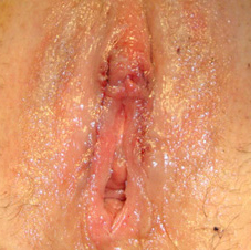 labia plasty before after 1b