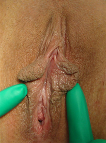 labia plasty before after 3a