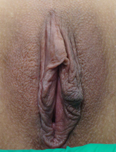 labia plasty before after 4a