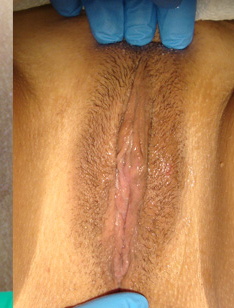 labia plasty before after 4b