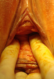 labia plasty before after 2a