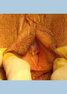 labia plasty before 3