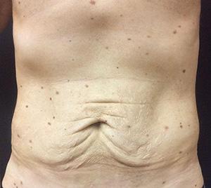 male-abdomino-before-1