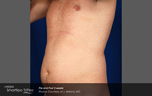 smart lipo men before