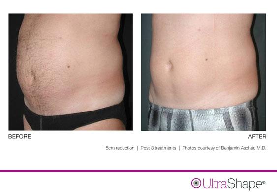ultrashape-5cm-ascher