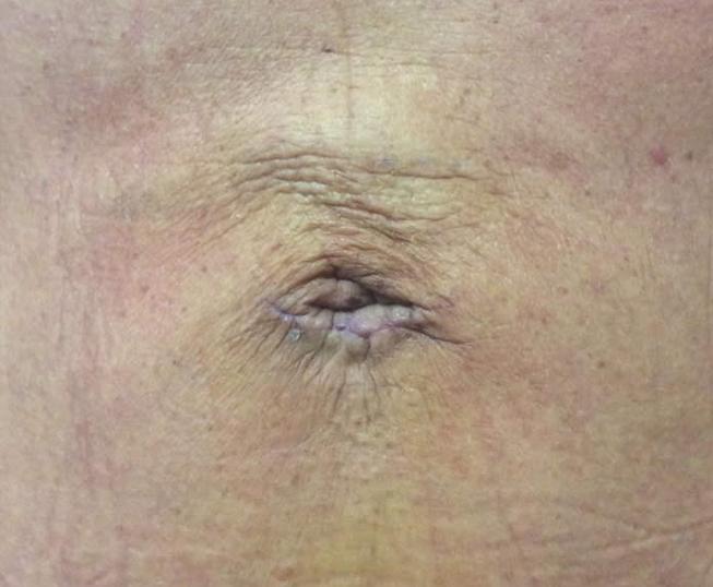umbilical hernia after