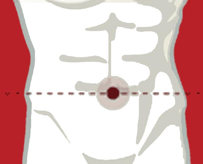 umbilical hernia cut