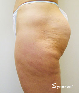 velashape_001_dr-before