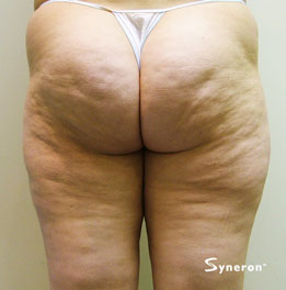 velashape_002_dr-before