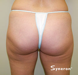 velashape_004_dr-after