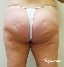 velashape_004_dr-before