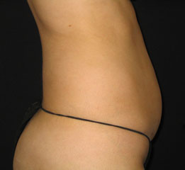 velashape_015_dr-before