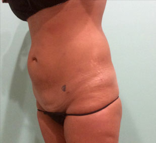 smartlipo-after-2
