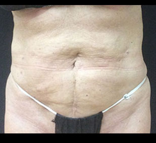 SmartLipo after pic