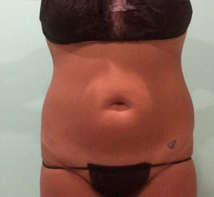 smartlipo-before-1