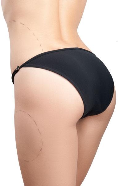 velashape-body-contouring