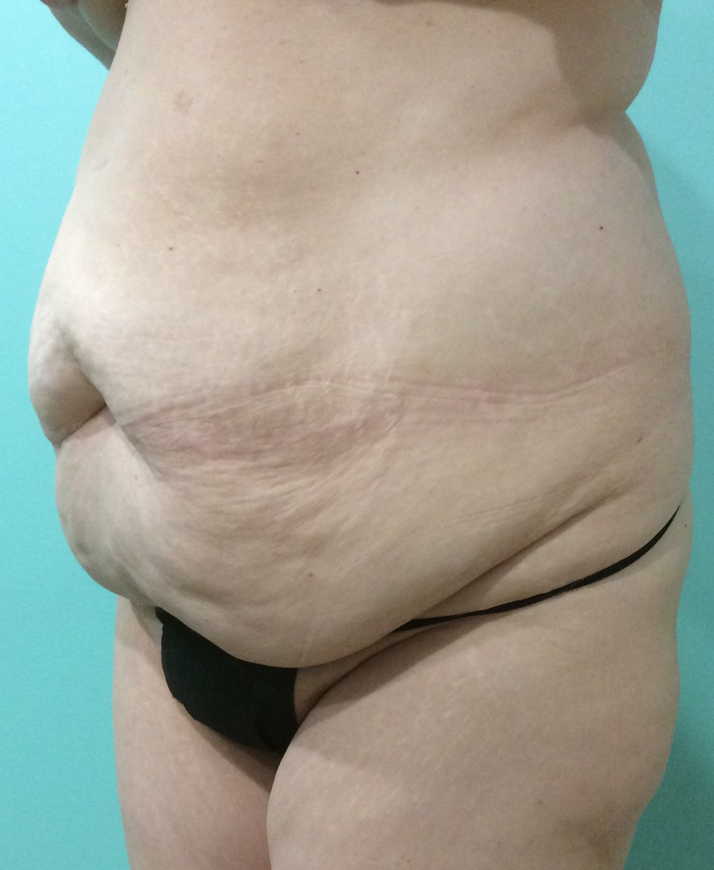 womens cosmetic procedures before photo