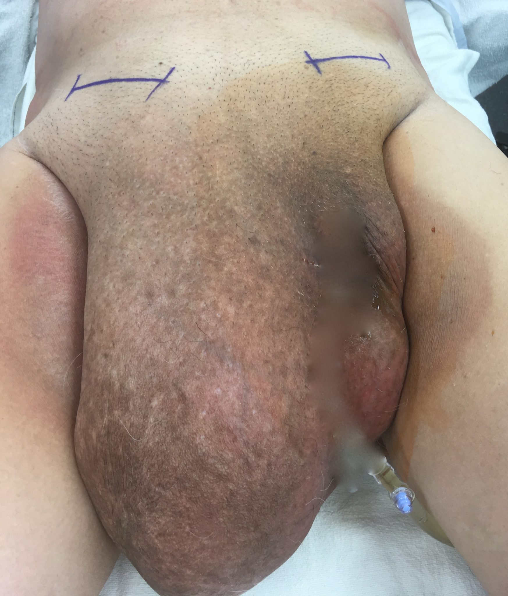 inguinal hernia before picture florida