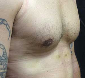 fort myers male breast reduction surgery after pic