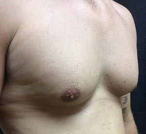 chest1-before