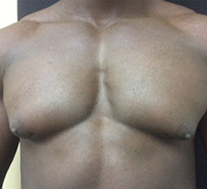 chest2-before