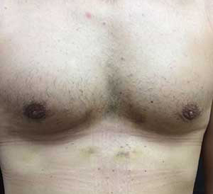 after picture male breast reduction florida