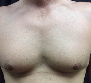 chest4-before