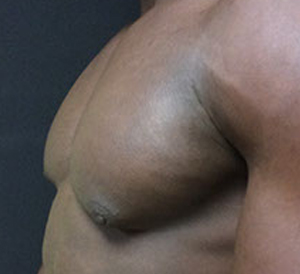 male breast reduction lipsuction after pic