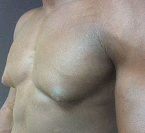 male breast reduction liposuction before pic