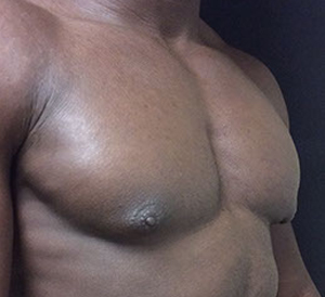 male breast reduction in fort myers after pic
