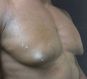 male breast reduction in fort myers before pic