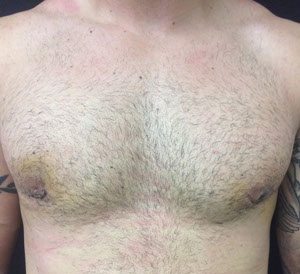 male breast reduction after picture