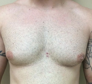 chest8-before