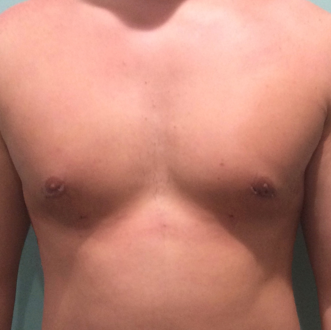 man-chest-after