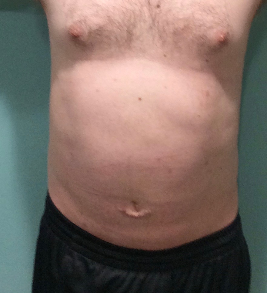After Liposuction/Umbilical hernia repair