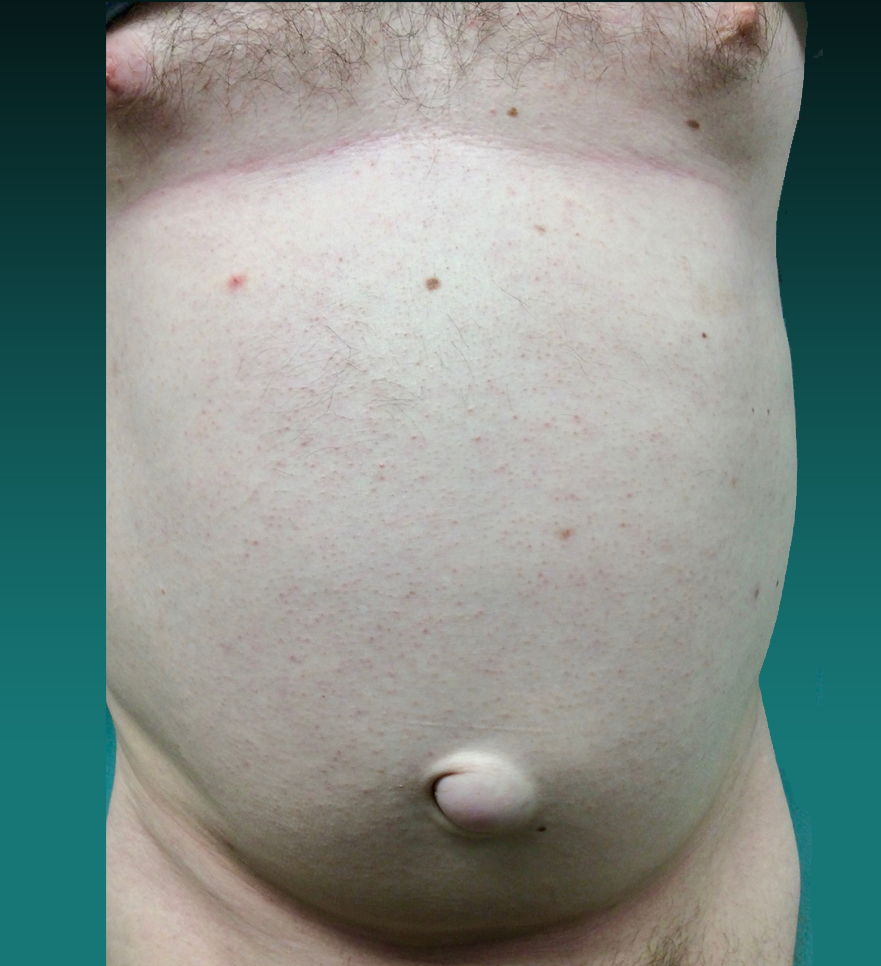 before and after hernia repair pictures