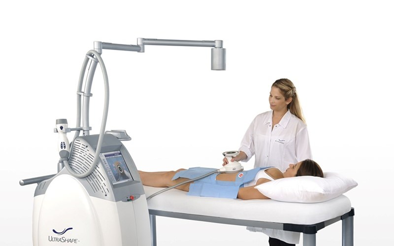 ultrashape machine